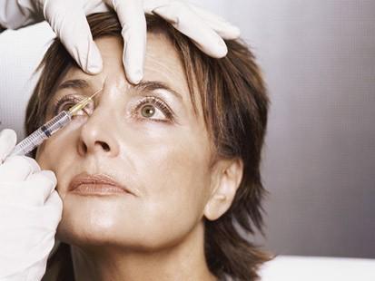 Botox... ¿poner o no poner? 2