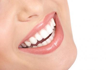 Como lucir una sonrisa perfecta con los dientes bien blancos 3