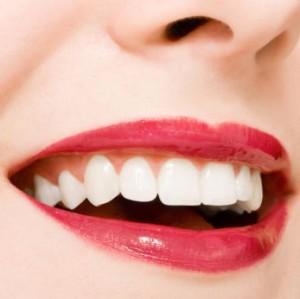 La blancura dental 3