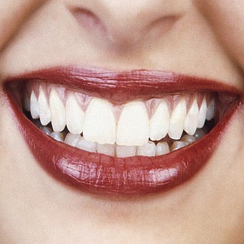 Una sonrisa, por favor 3